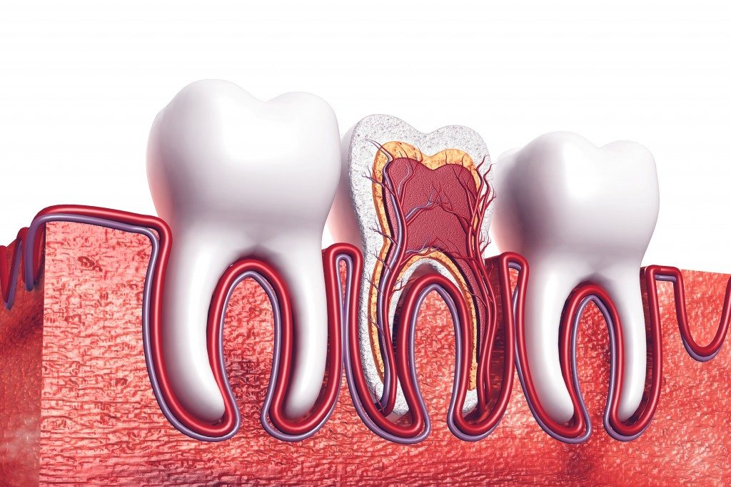 an digital photo of a root canal