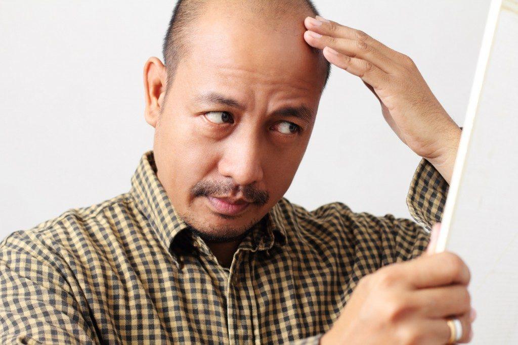 a balding man