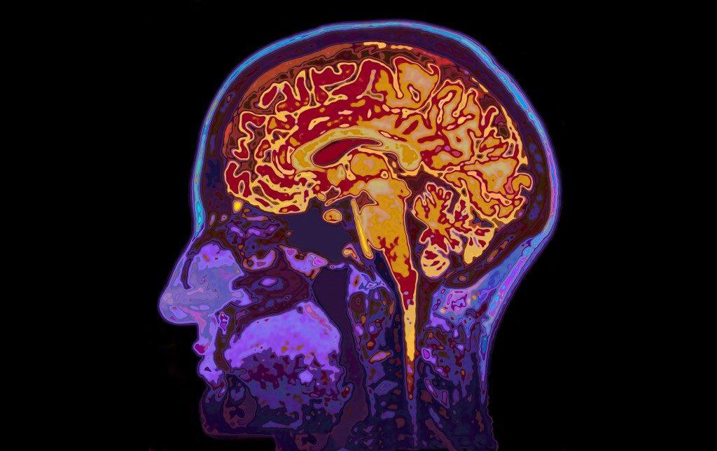 brain MRI